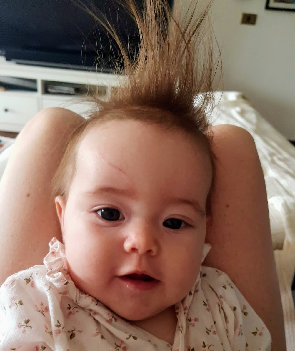 treating cradle cap with biotin