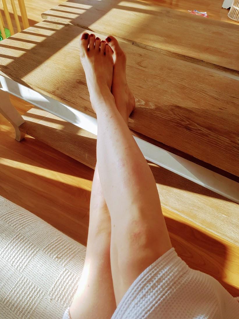 psoriasis leve en las piernas